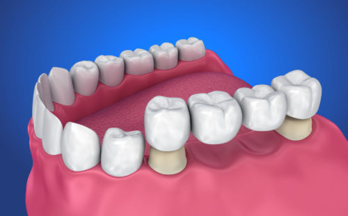 A graphic showing a dental bridge