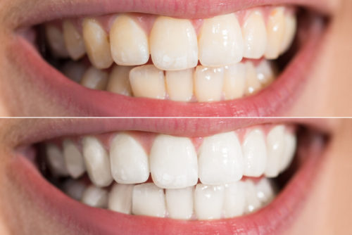 A before and after of teeth whitening.